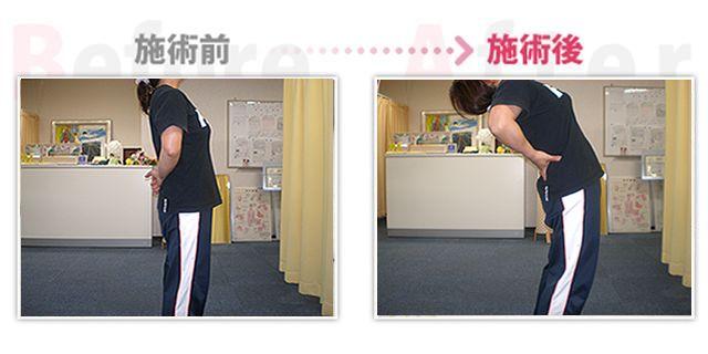 【安城整体カイロ】ぎっくり腰改善。(治療効果:知立市在住)