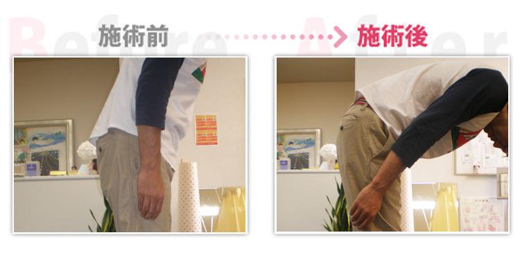 【安城整体カイロ】ぎっくり腰改善。(治療効果:岡崎市在住)
