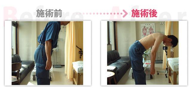 腰痛、ぎっくり腰が改善。(治療効果:刈谷市在住)