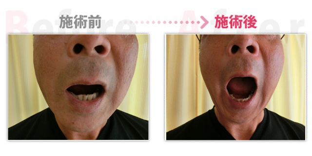 顎関節の痛みが改善 安城市整体鍼灸マッサージ院