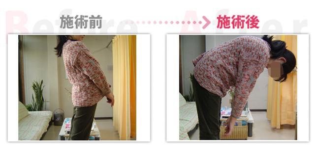 腰痛、ぎっくり腰、肩こり改善。(治療効果:豊田市在住)