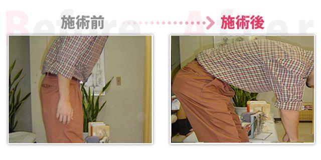ぎっくり腰改善。(治療効果:安城市在住)